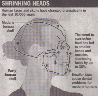 La tendencia a ingerir comida más blanda nos ha llevado a tener huesos y músculos más pequeños, encogiendo nuestras caras hasta un 30%durante los últimos 10.000 años. Mandíbulas más pequeñas son las causantes de problemas dentales en los humanos modernos